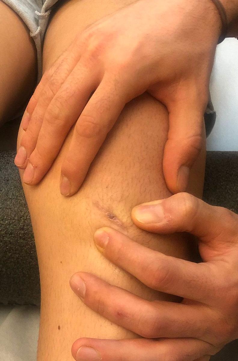mani cicatrice ginocchio